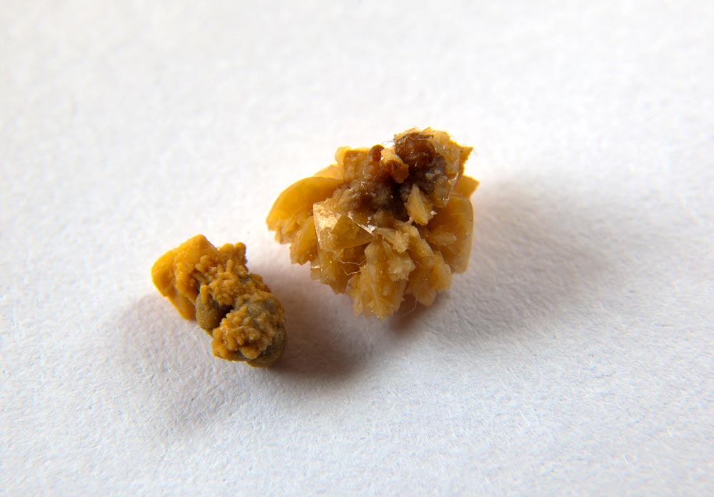 Know these Common Risk Factors for Kidney Stones